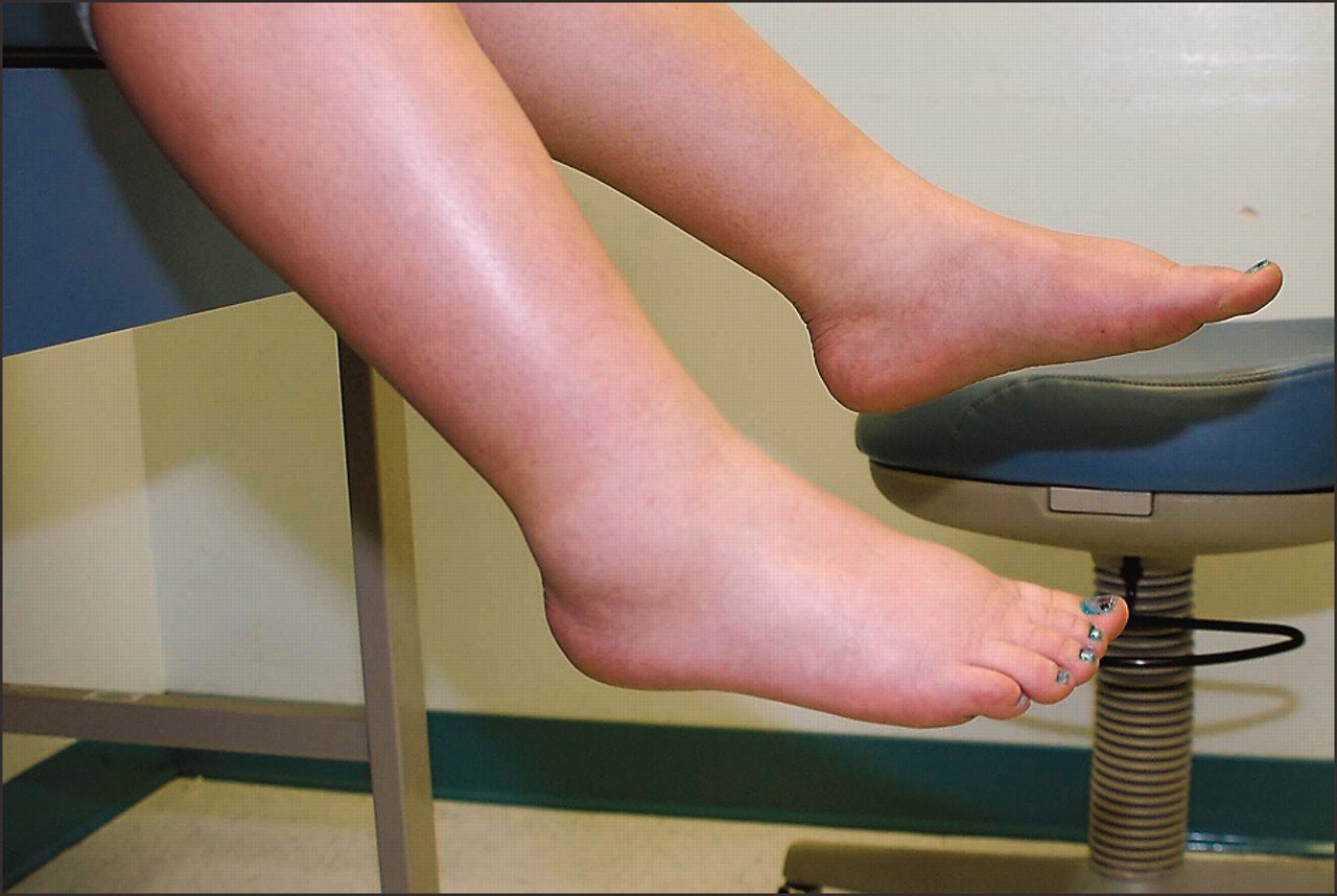 10 Ways To Ease And Lessen Feet Swelling During Pregnancy